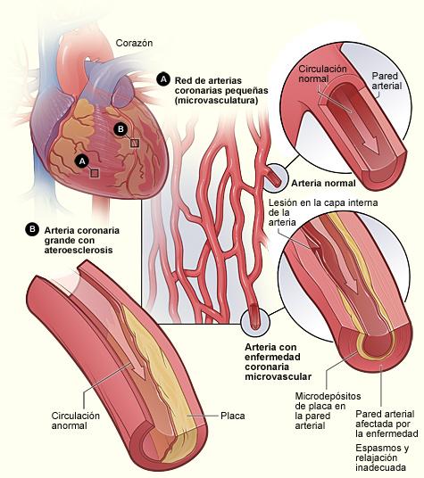 aterosclerosis coronaria